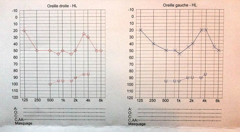 Hearing Loss In Percentages And Decibels Hearing Like Me