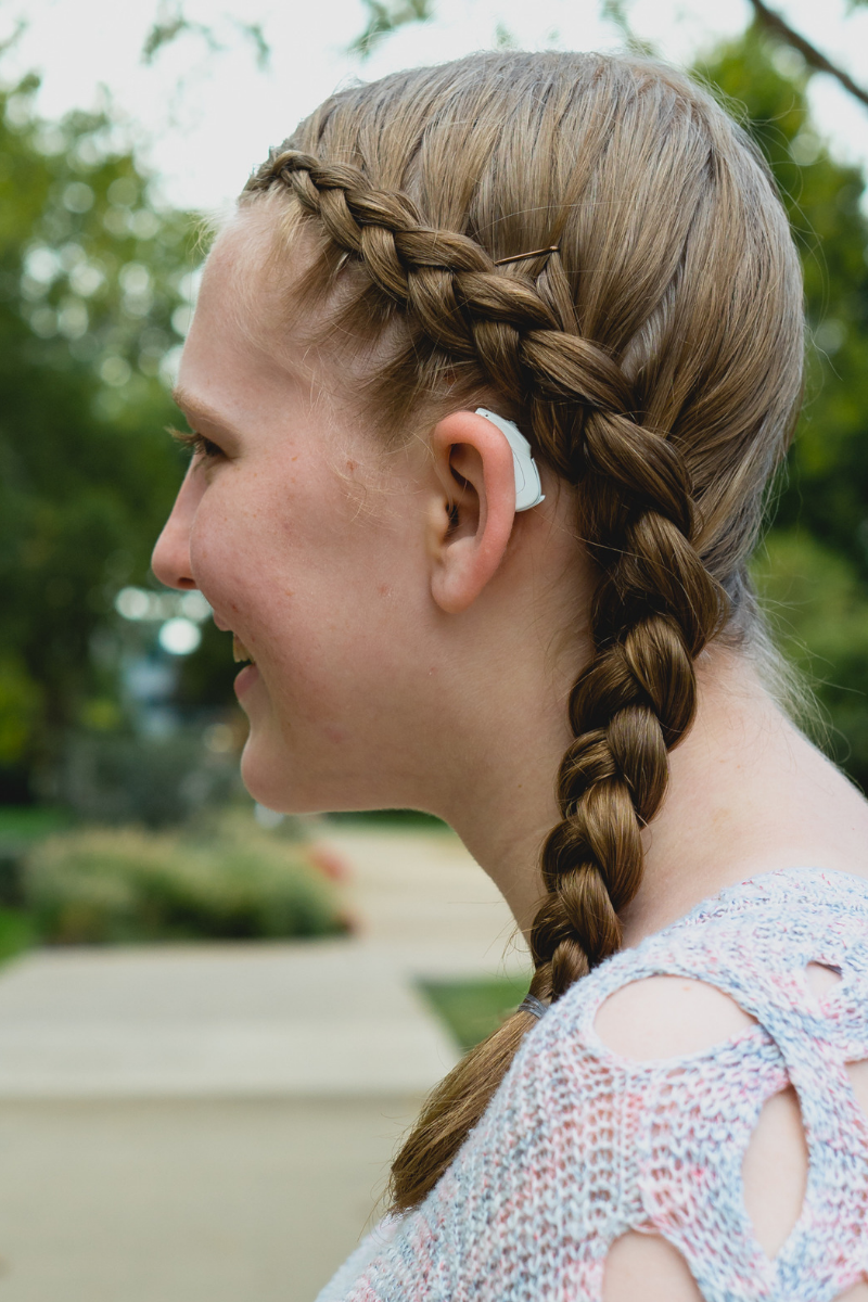 Phonak CROS and cochlear implant